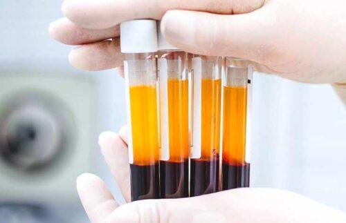 حقن البلازما الغنية بالصفائح الدموية