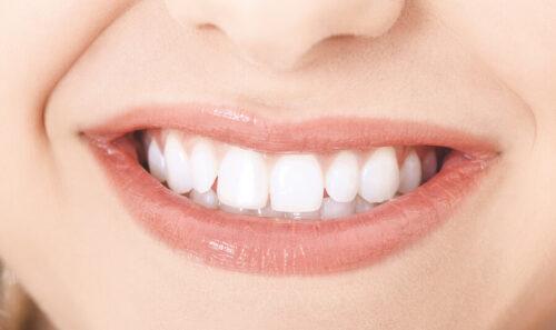 عمليّة تلبيس الأسنان للحصول على ابتسامة سحريّة