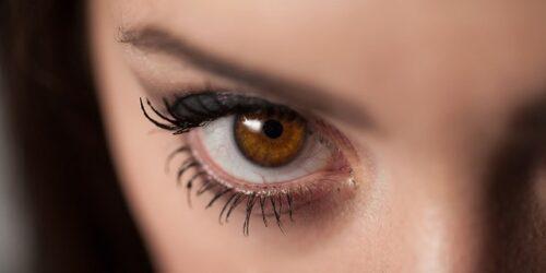 الهالات السوداء تحت العين