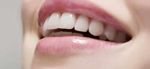 تجنّبوا هذه العادات بعد عمليّة تبييض الأسنان