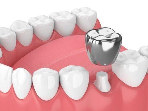 عمليّة تلبيس الأسنان ومراحلها