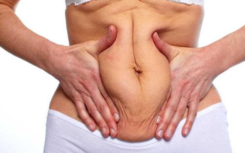 عمليّة شفط الدهون وشدّ البطن
