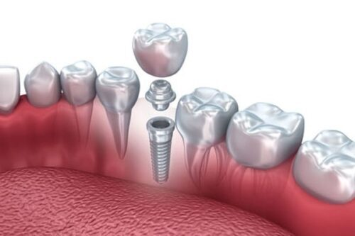 عمليّة زرع الأسنان